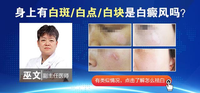 许昌白癜风医院